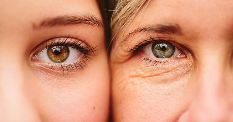 da mắt bị lão hóa